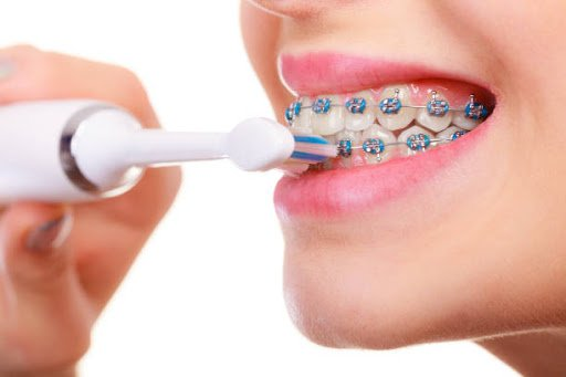 Woman brushing teeth with braces using brush